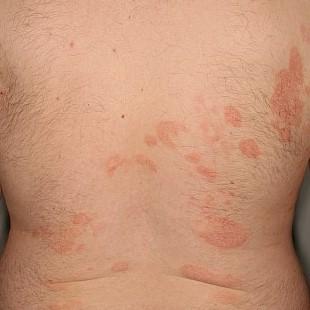 Plaques mycosis fongoïde